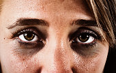 Dark rings round the eyes of a sad, exhausted woman