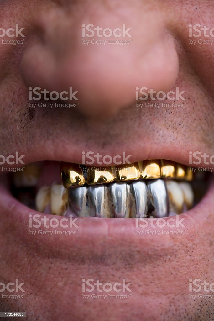 Decayed, Golden and Metal Teeth royalty-free stock photo