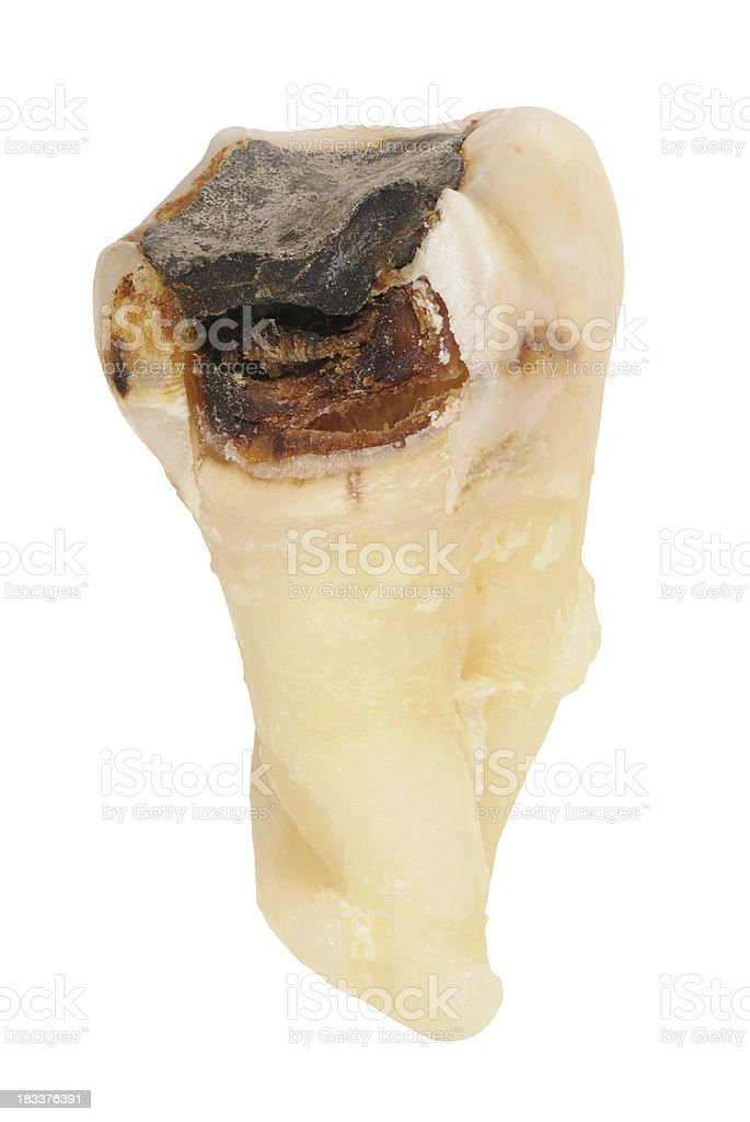 decayed human tooth with Karies, Cavity stock photo