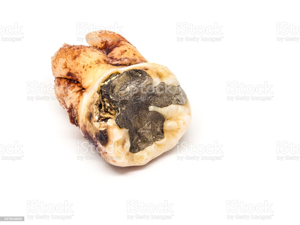 decayed tooth-2 stock photo