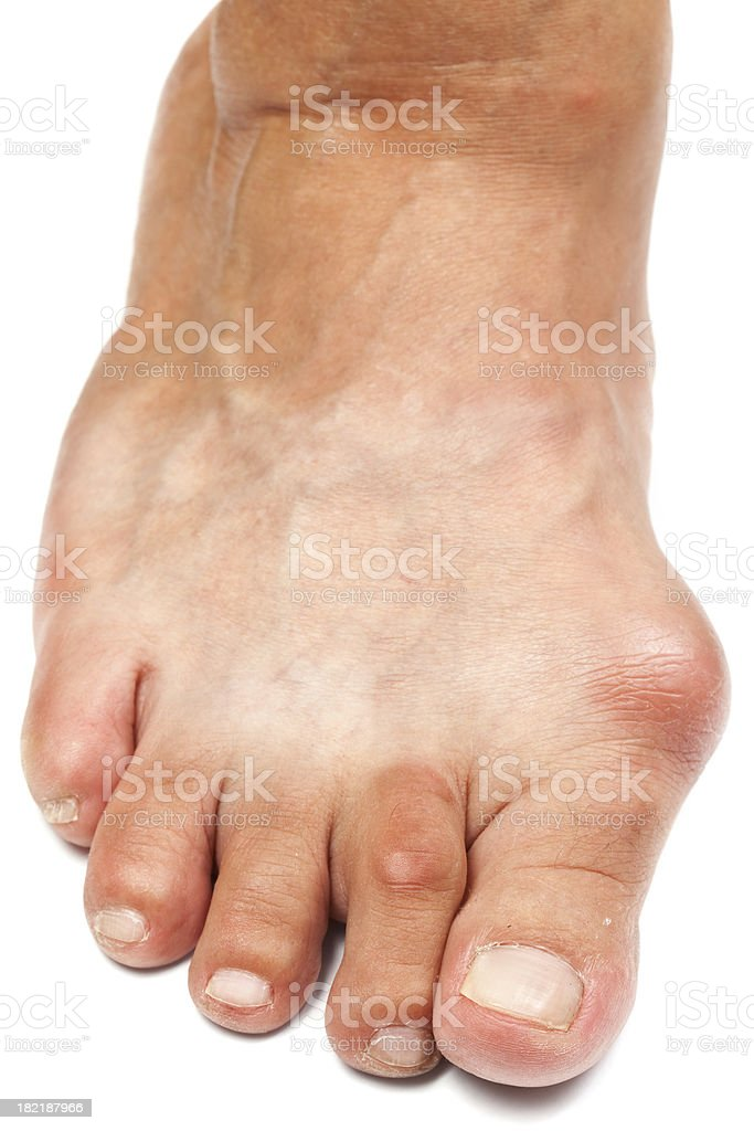 Deformed Foot - Bunion stock photo