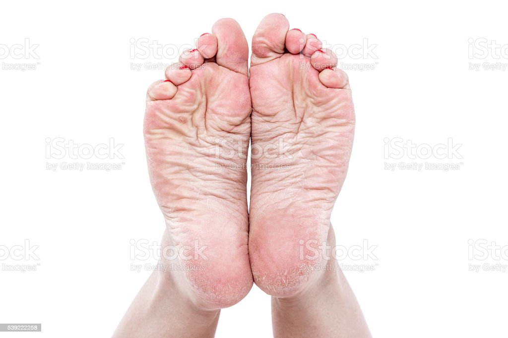 dehydrated skin on the heels stock photo