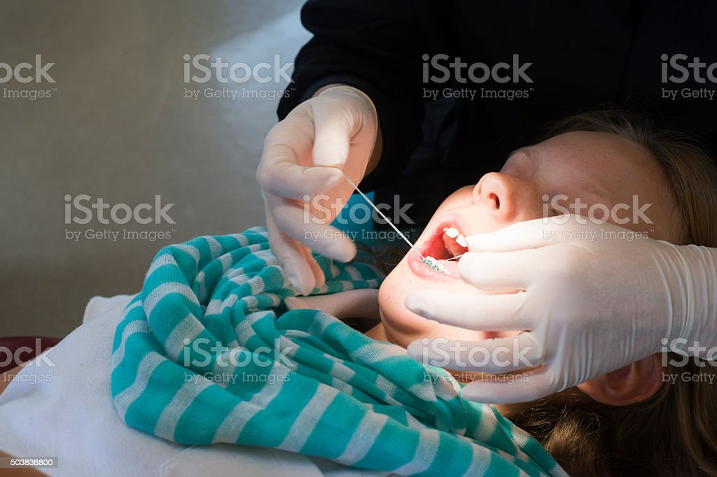 Dental assistant flosses a patient's teeth stock photo