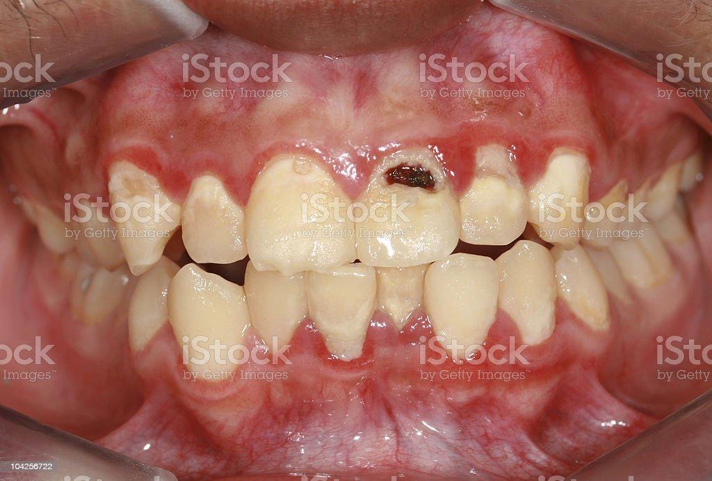 Dental Biofilm stock photo