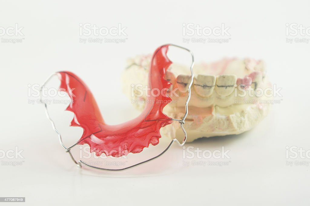 Dental brace and retainer on white background. stock photo