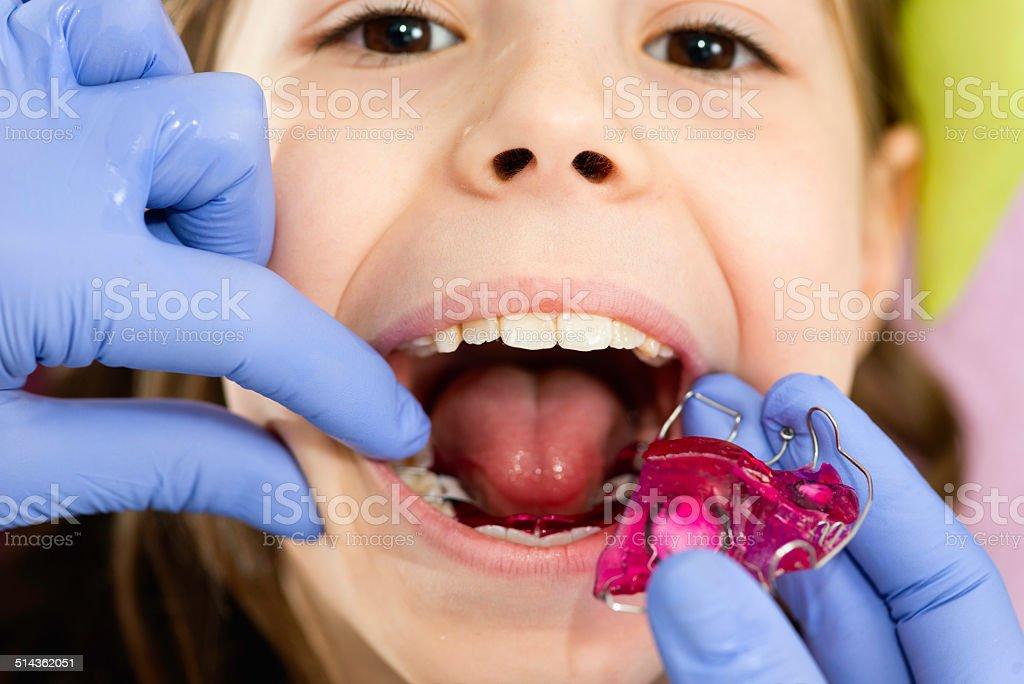 Dental braces stock photo