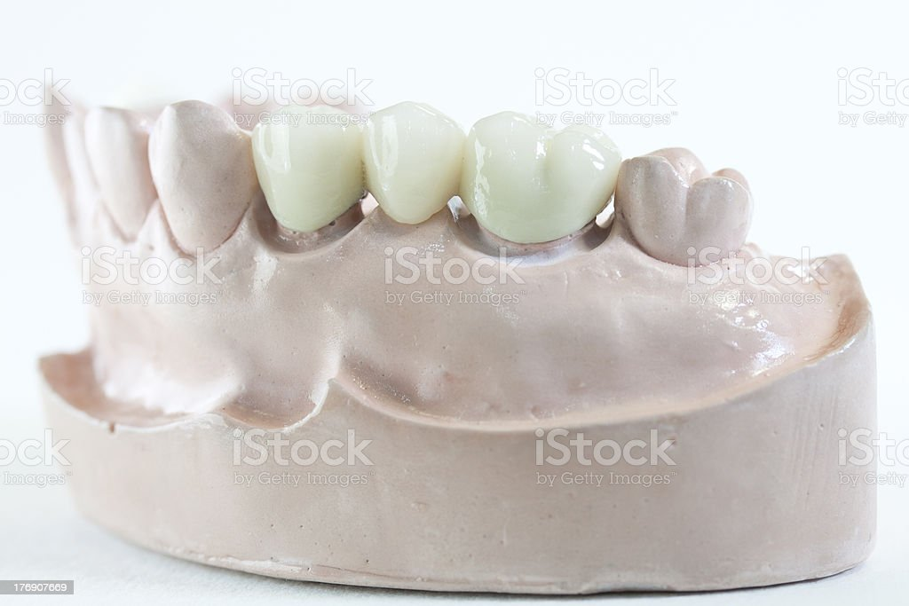 Dental Bridge stock photo