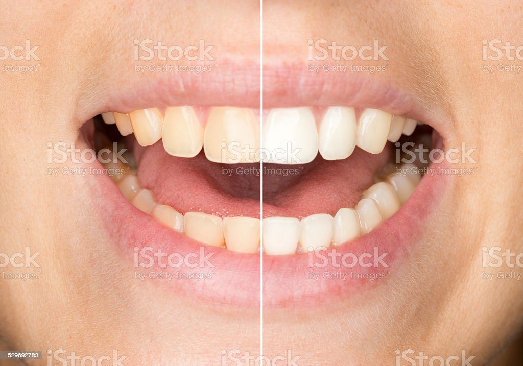Dental Care, Teeth before and after Whitening / Bleaching stock photo