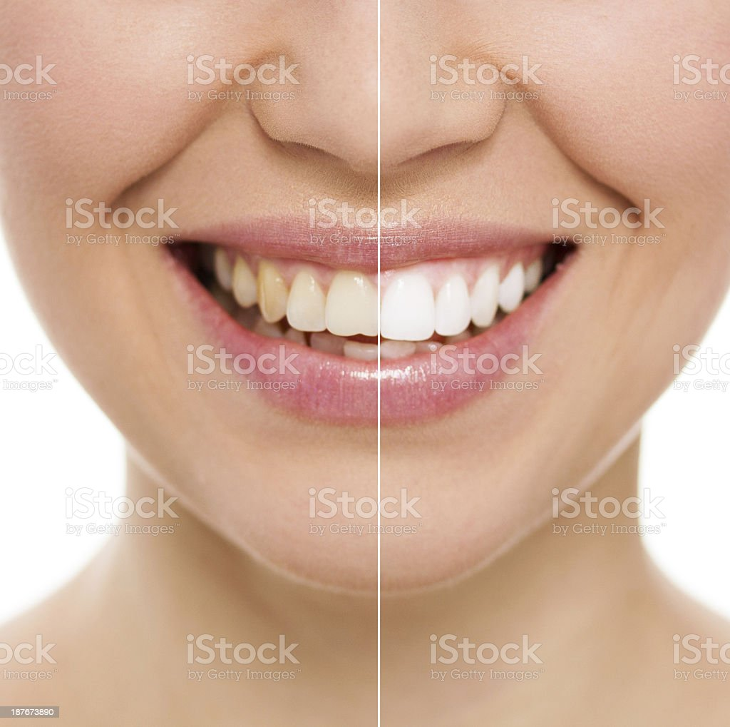 Dental care woman stock photo