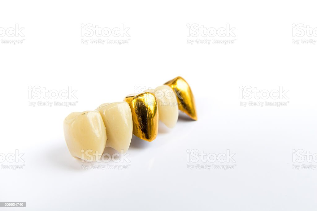 Dental ceramic and gold tooth crowns on white background. Isolated. stock photo