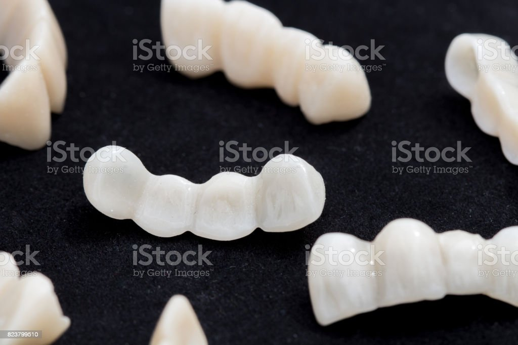 Dental ceramic or zirconium tooth bridges on dark black surface. stock photo