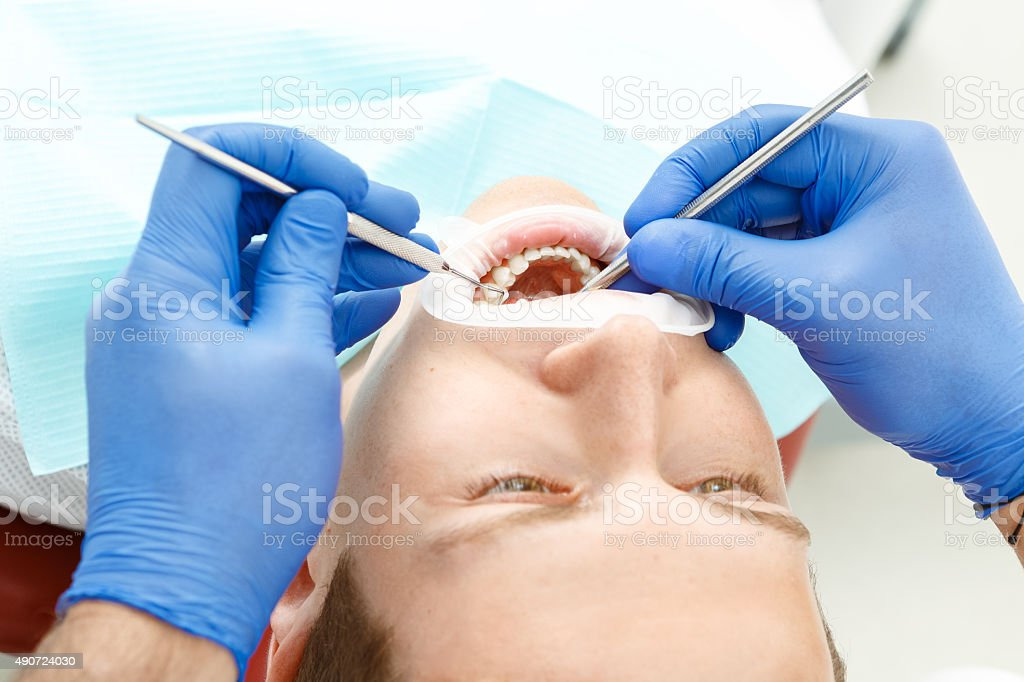 Dental checkup of the pacient stock photo
