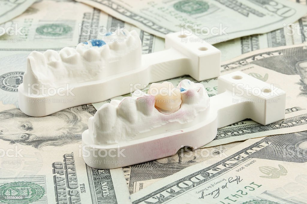 Dental Costs Concept stock photo