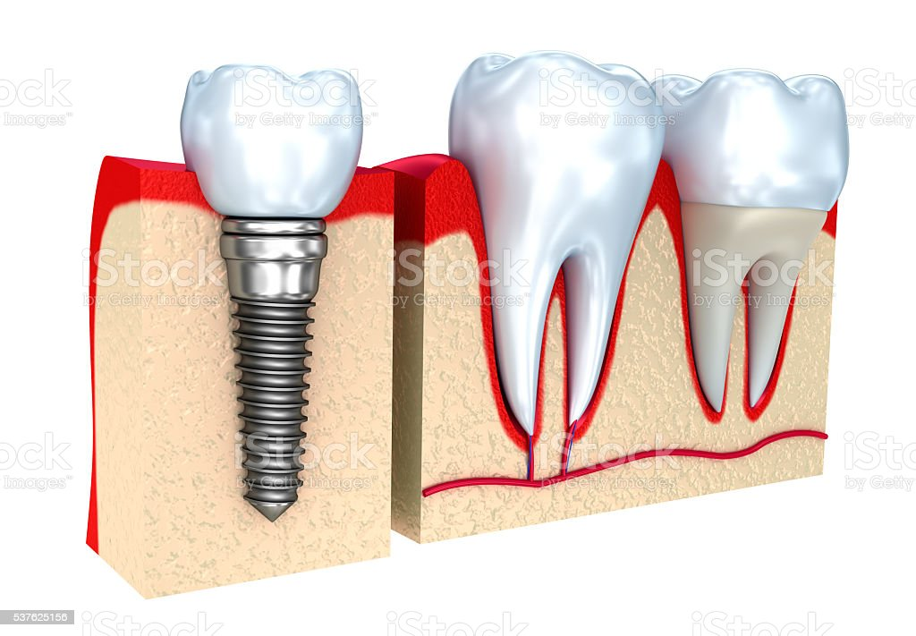 Dental crown , implant and teeth , 3d image . stock photo