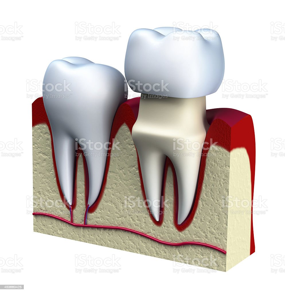 Dental crown installation process, isolated on white stock photo