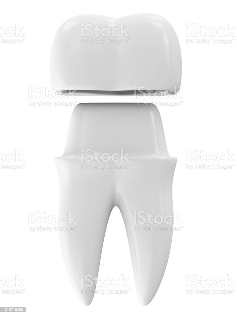 Dental Crown on a Tooth isolated on white background stock photo