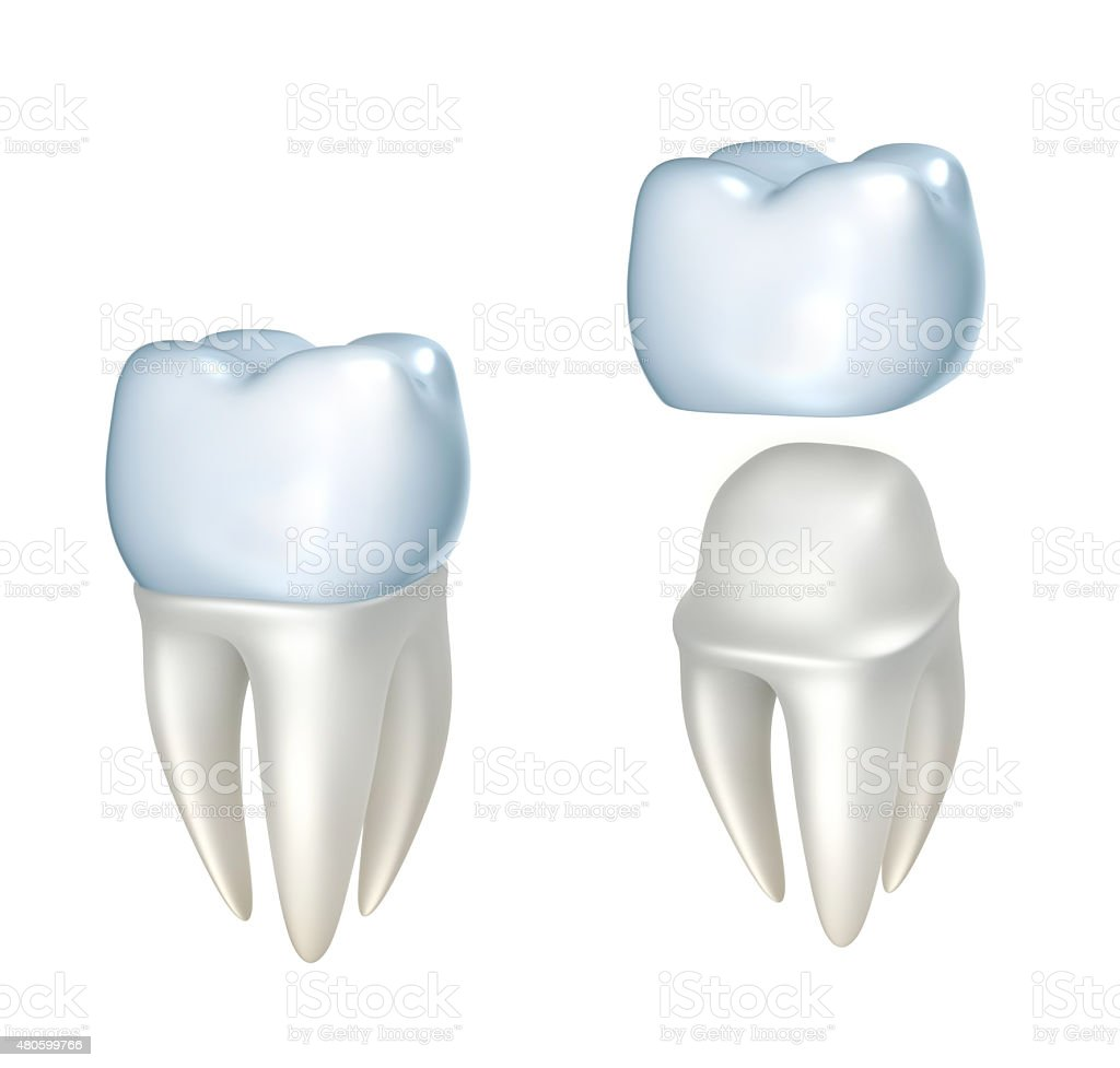 Dental crowns and tooth, isolated on white stock photo
