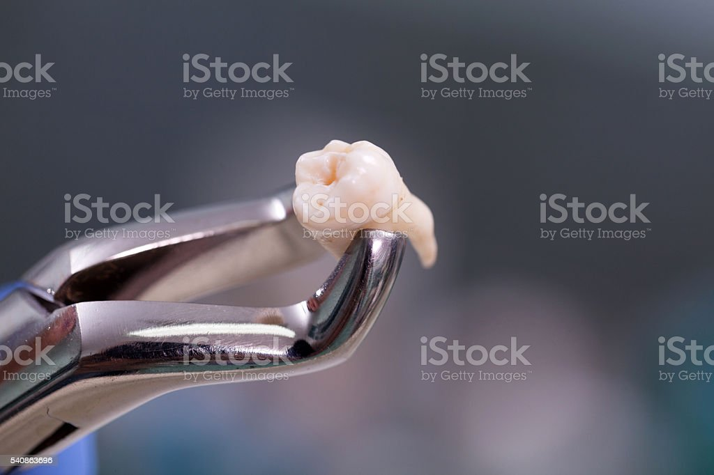 Dental equipment,tooth extraction stock photo