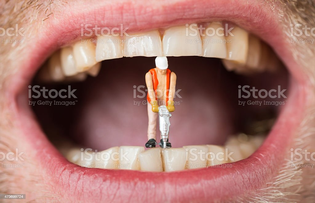 dental filling caries abstract with mini construction worker