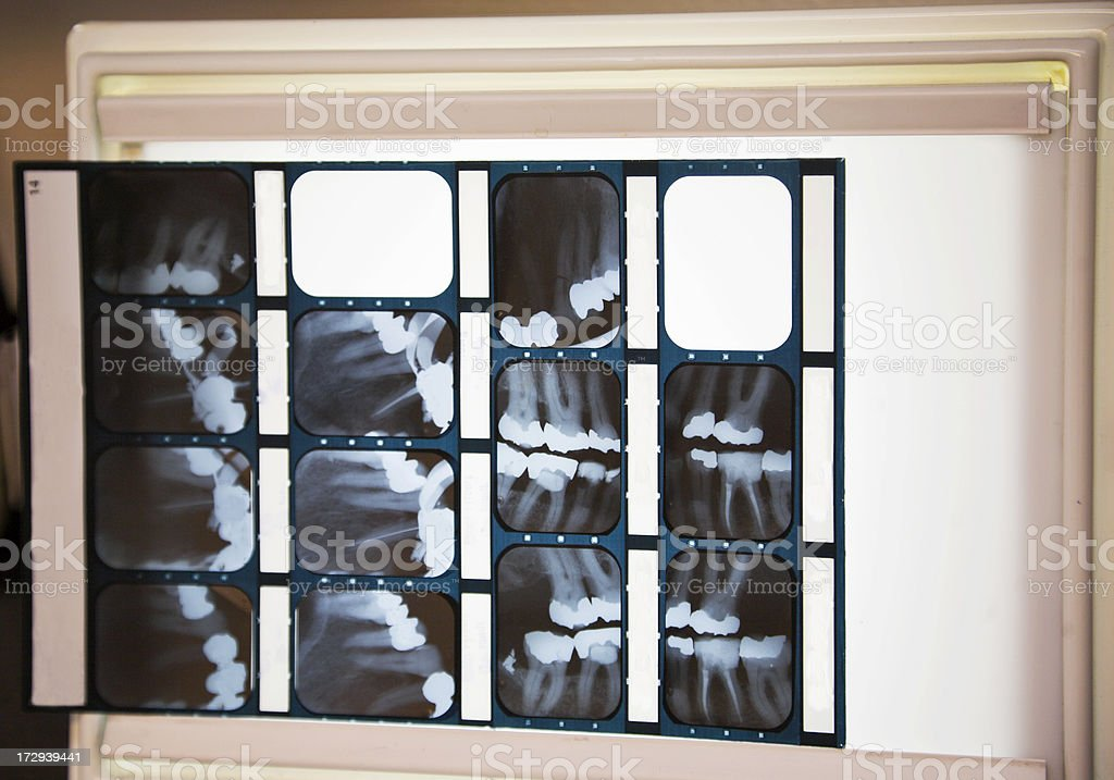 dental film royalty-free stock photo