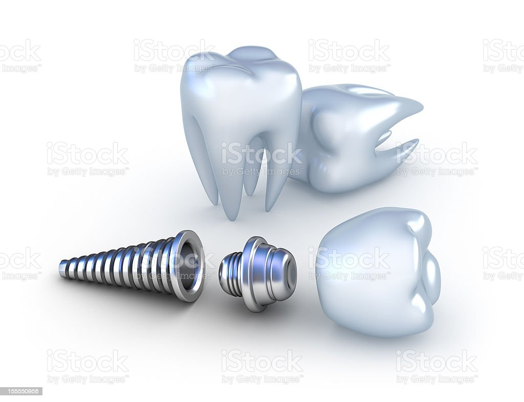 Dental implant and teeth royalty-free stock photo