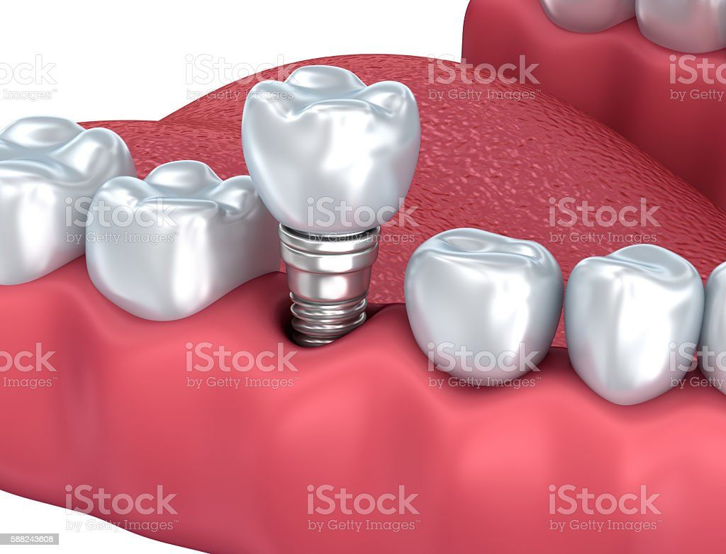 Dental implant Close-up . 3D rendering stock photo