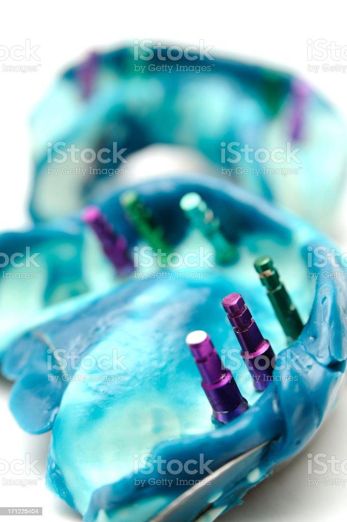 Dental implant model royalty-free stock photo