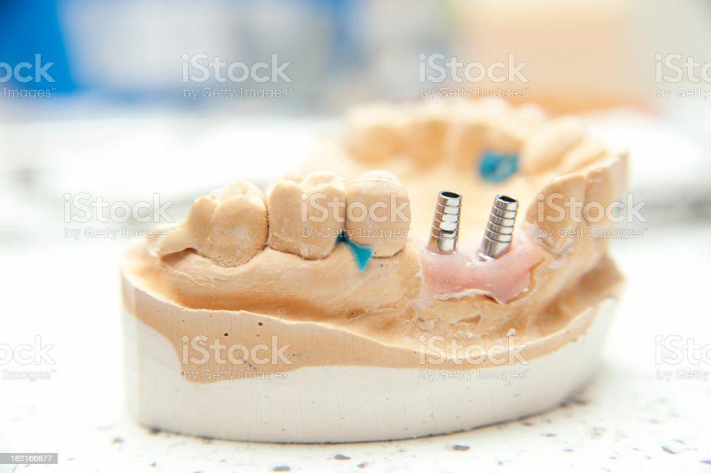 Dental implant model stock photo