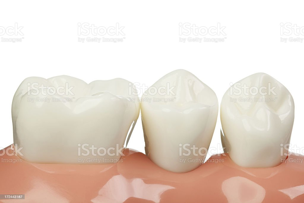 Dental Implant Model with the crown stock photo