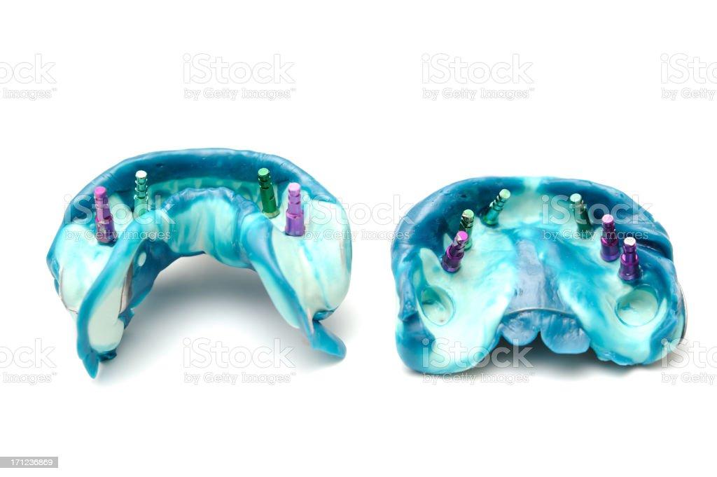 Dental implant models on white background royalty-free stock photo