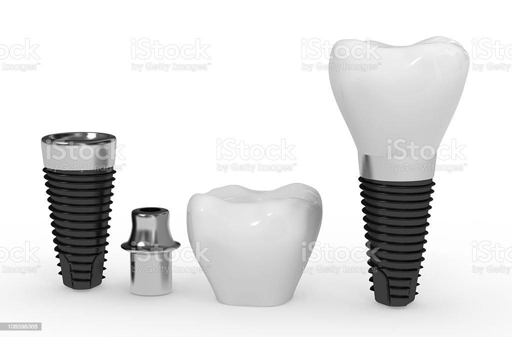dental implant royalty-free stock photo