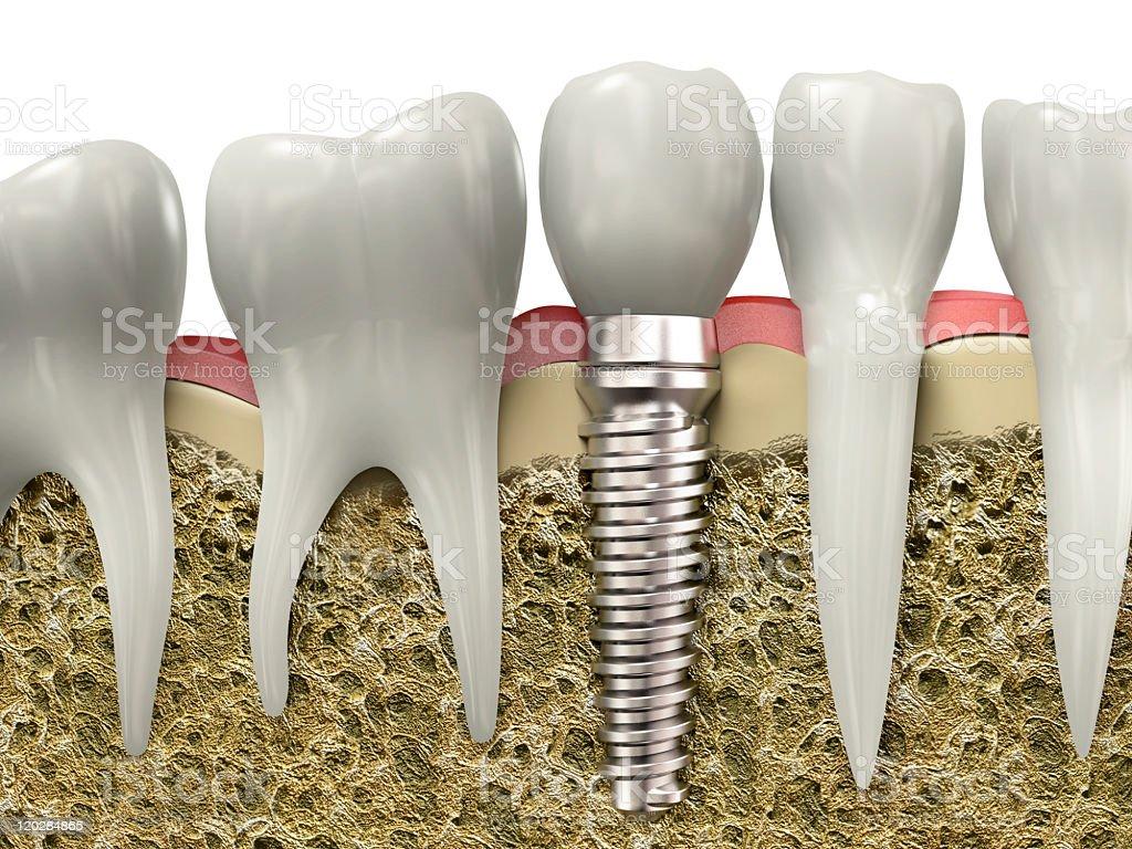 Dental implant stock photo