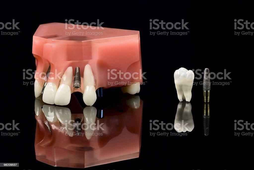 Dental implantation stock photo