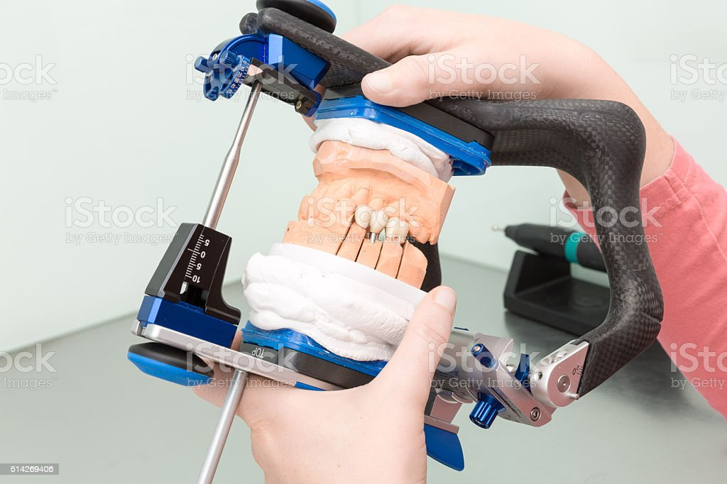dental implants are checked in an articulator in a dental laboratory stock photo
