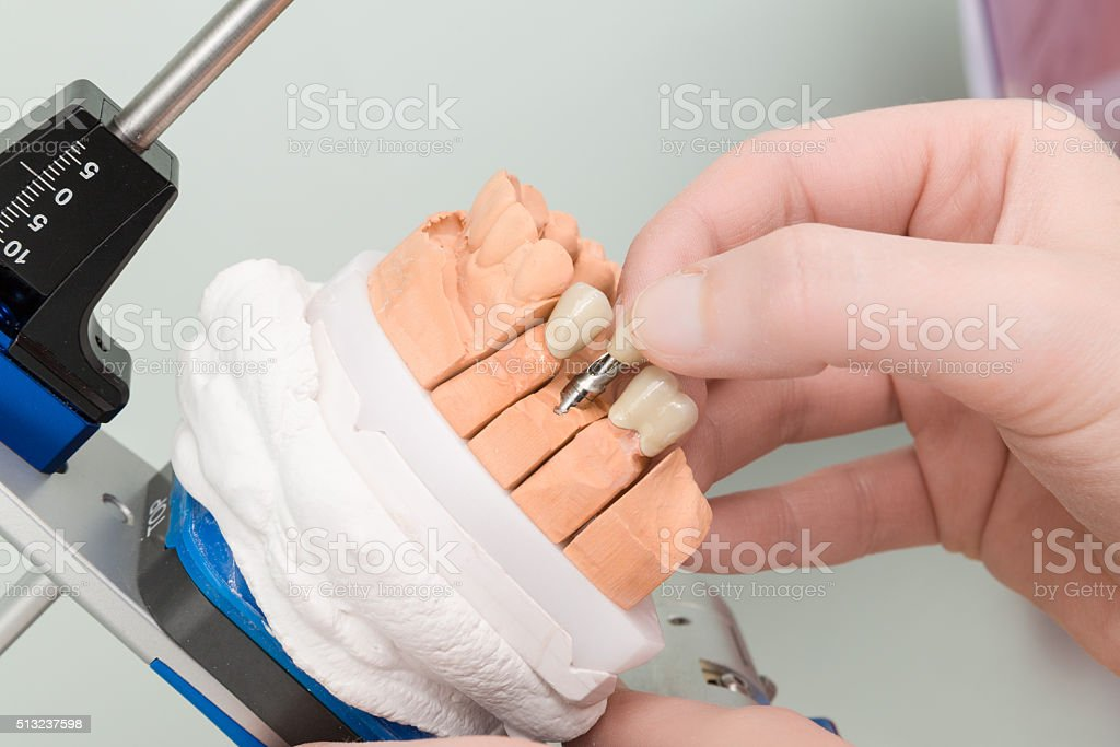 dental implants in a dental laboratory stock photo