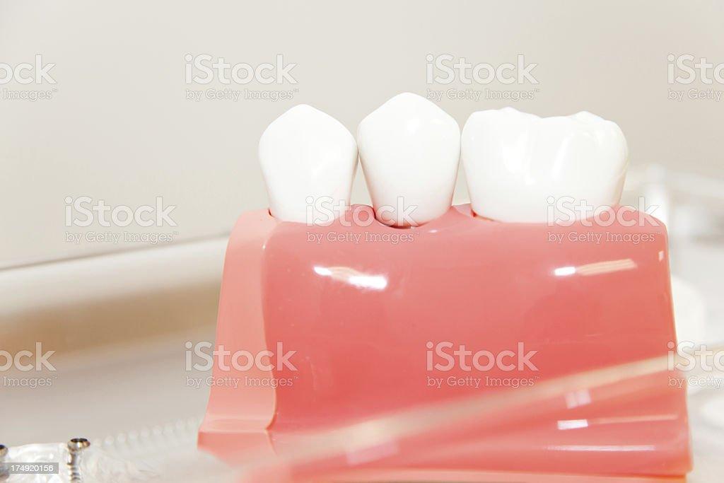 Dental implants royalty-free stock photo