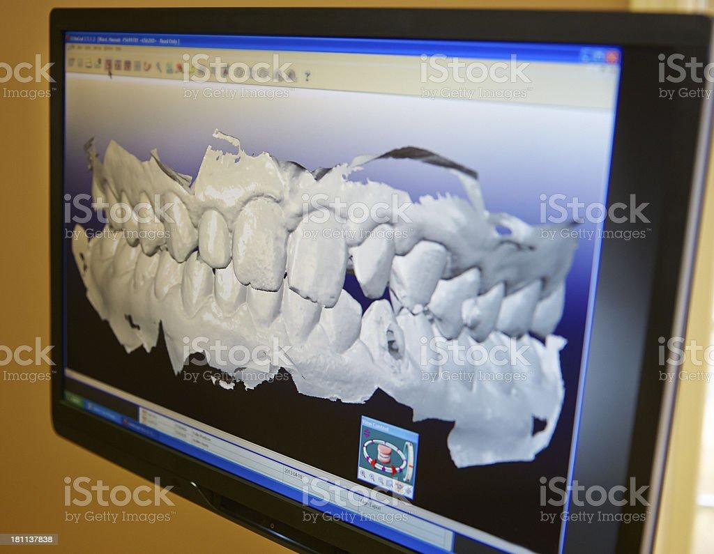 Dental Impression royalty-free stock photo