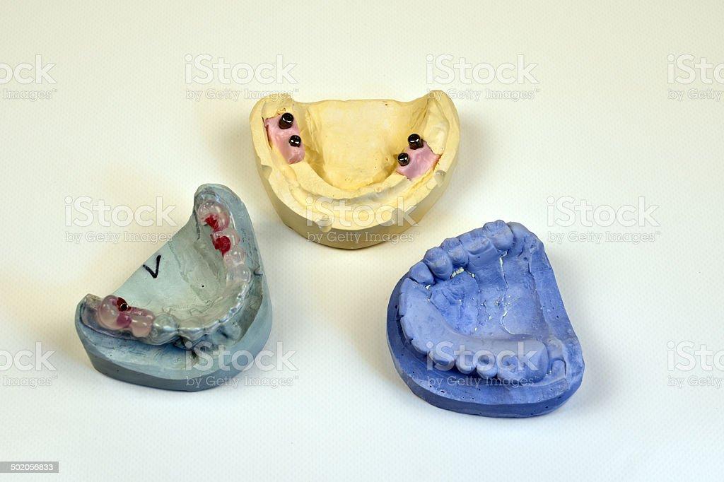 Dental impression stock photo