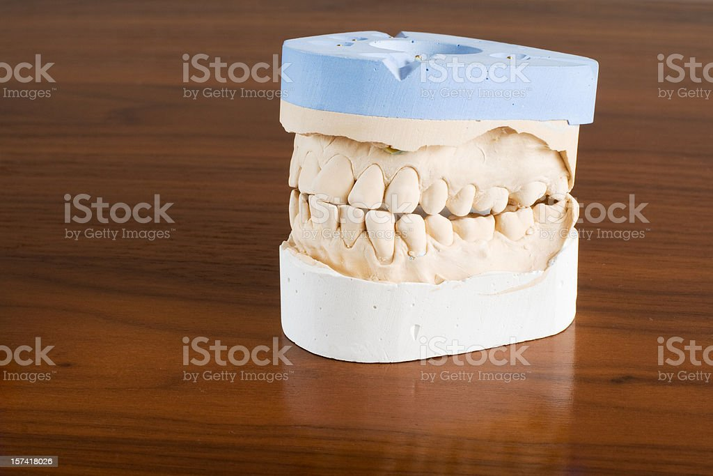 Dental mould royalty-free stock photo