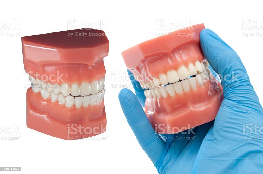 dental mould with invisible orthodontic removable aligners stock photo
