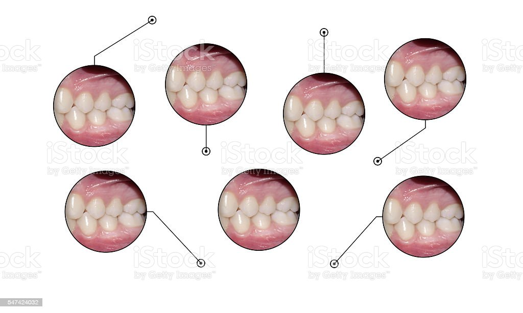 dental occlusion medical infopraphic elements shapes stock photo