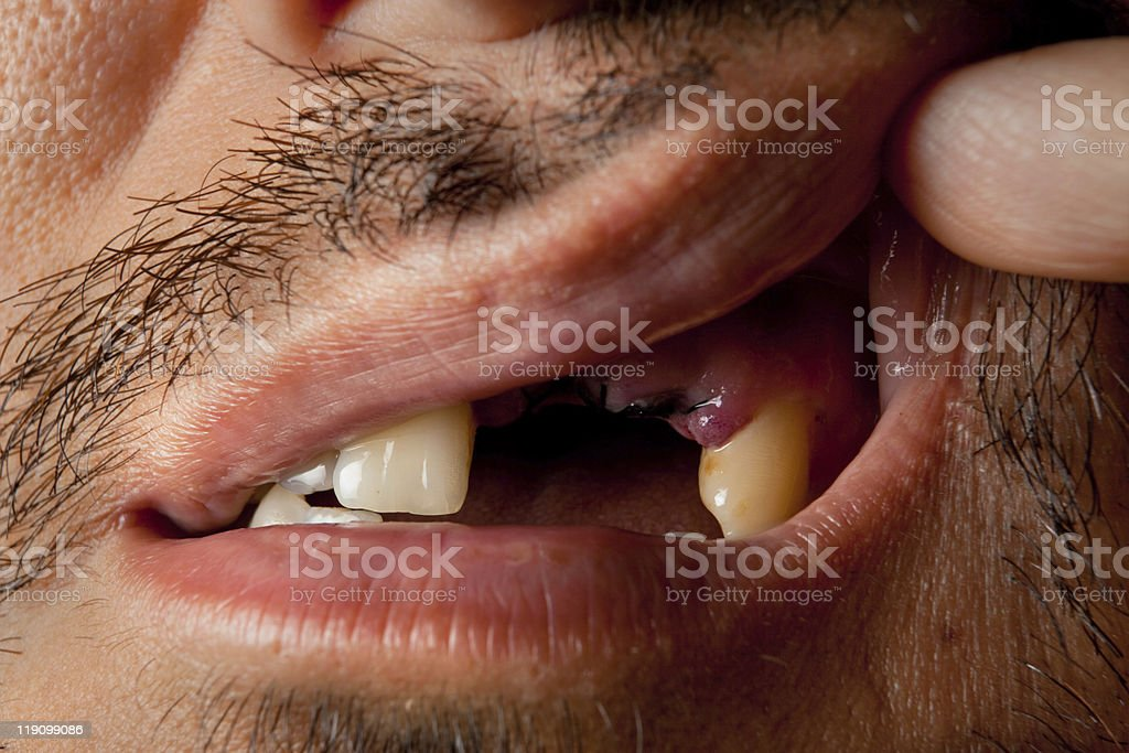 Dental Operation With Suture in Mouth stock photo