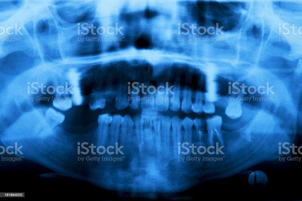 Dental panorama royalty-free stock photo
