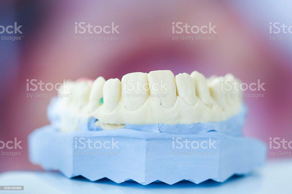 Dental plaster mold stock photo