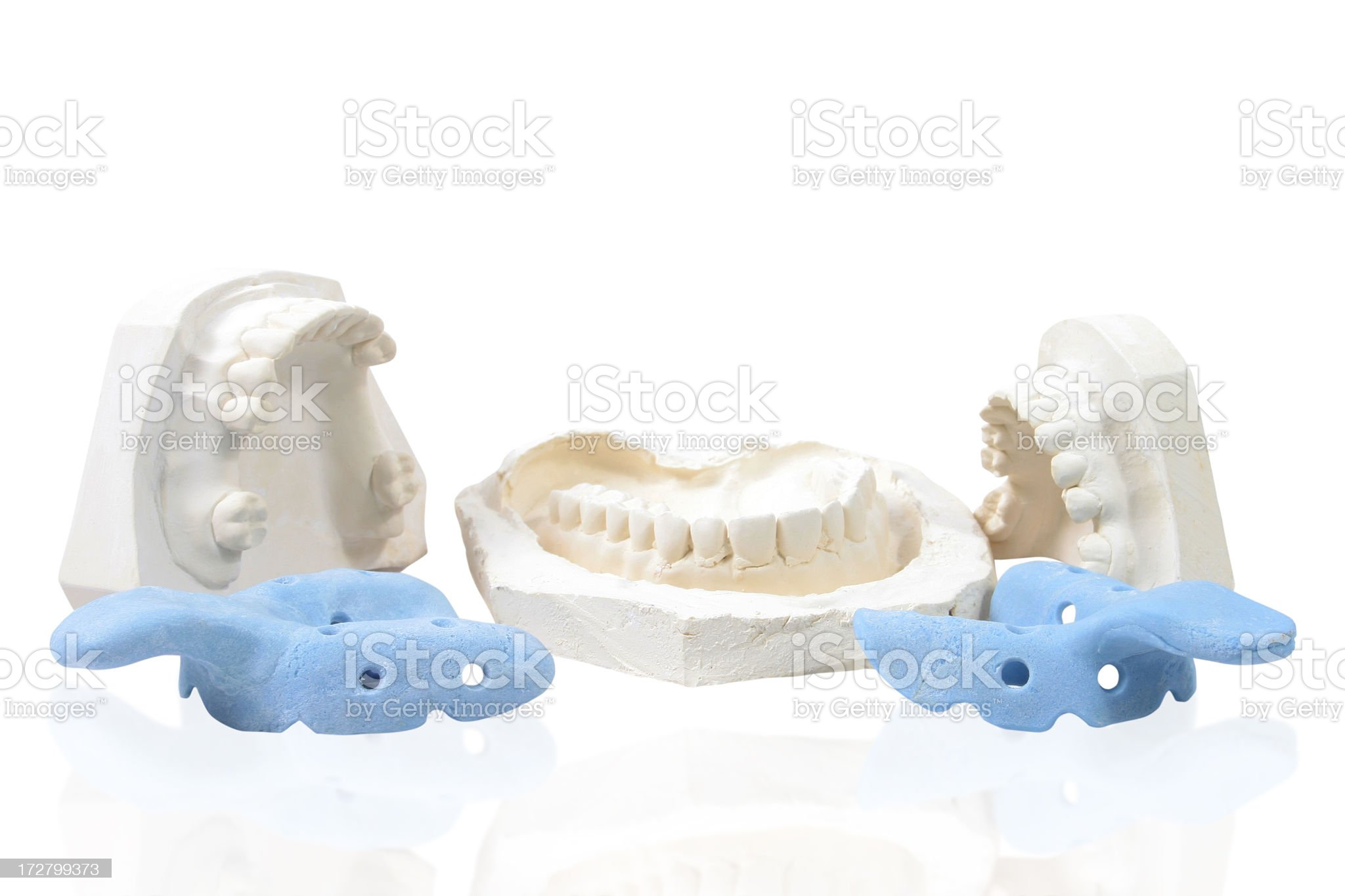 Dental plaster moulds royalty-free stock photo