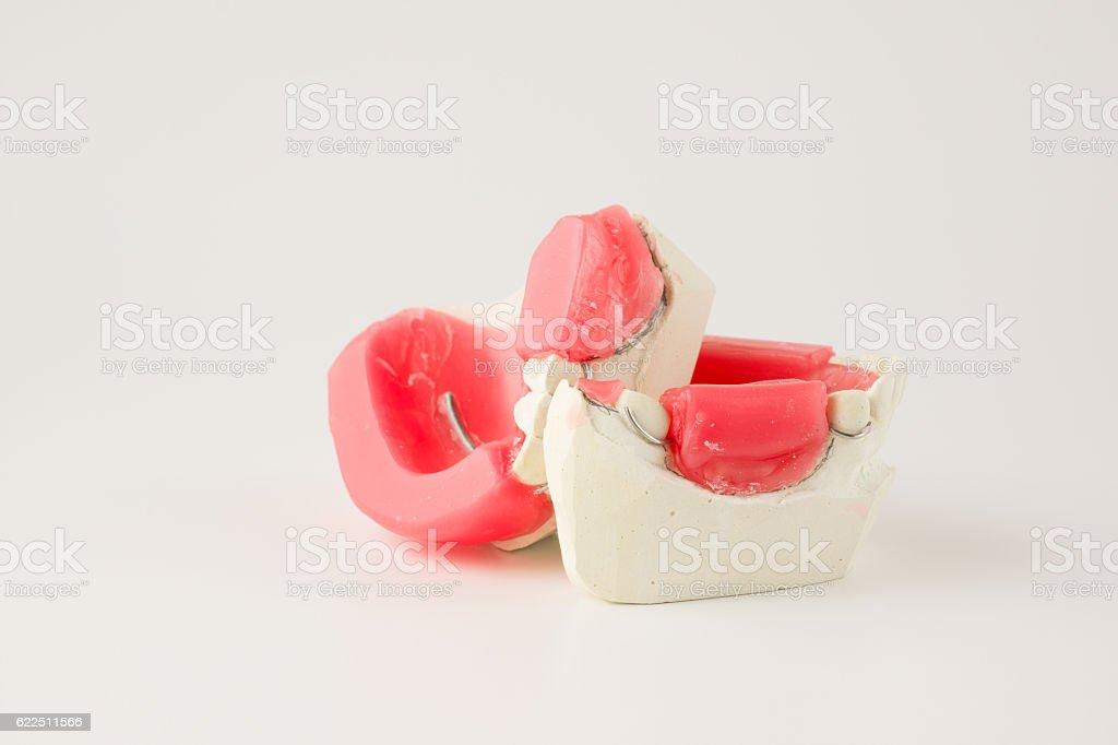 dental prosthesis manufacturing step stock photo