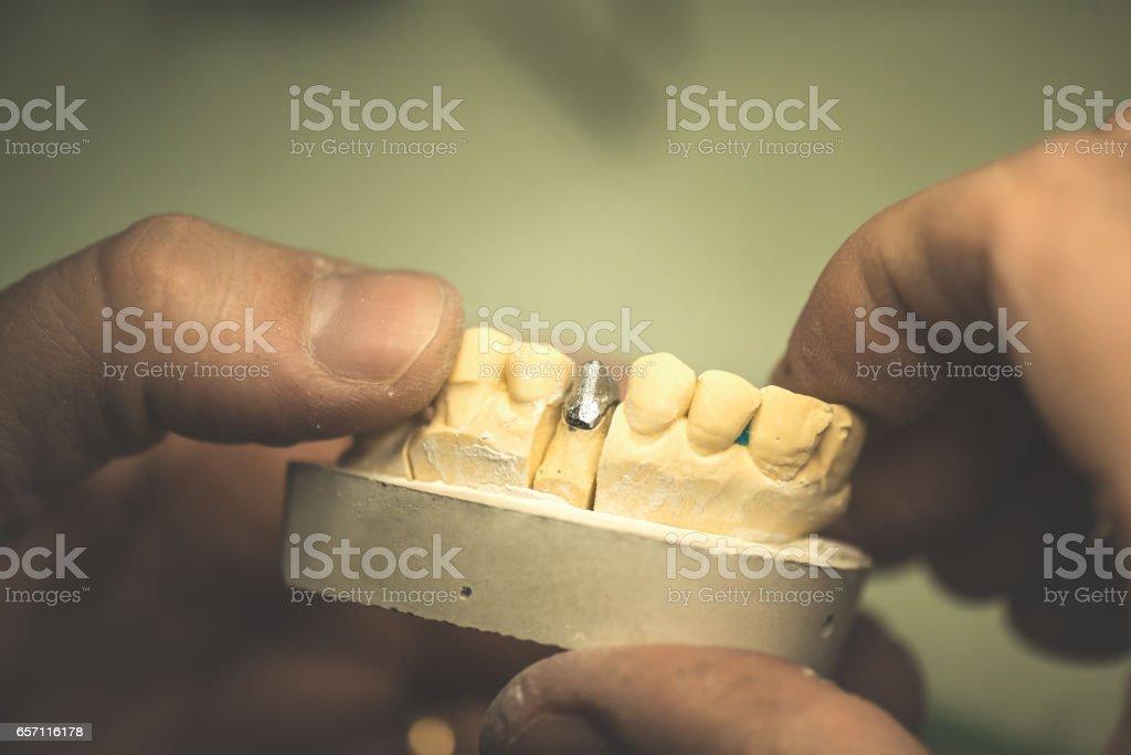 Dental Prosthesis stock photo
