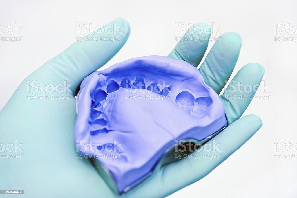 Dental Silicon Impression stock photo