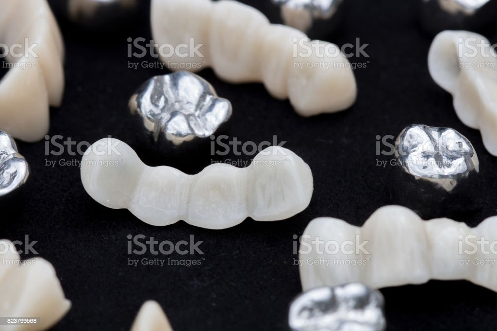 Dental silver metal tooth crowns and ceramic or zirconium tooth bridges on dark black surface. stock photo