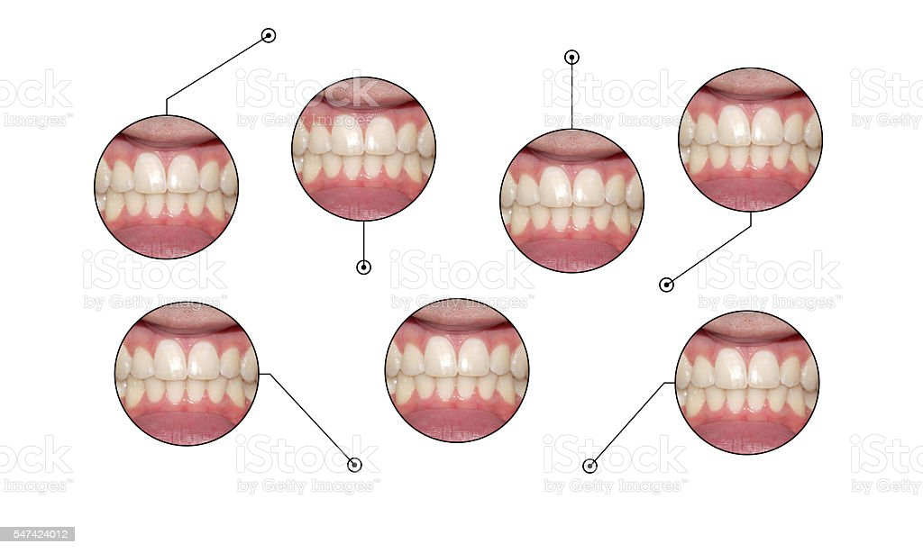 dental smile infographic callouts stock photo